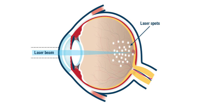 Retinal Services and Surgery  plessenophthalmologycom