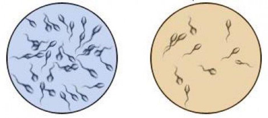 esperma, espermas, semen hombre, hombre espermatozoides, fertilidad hombre,