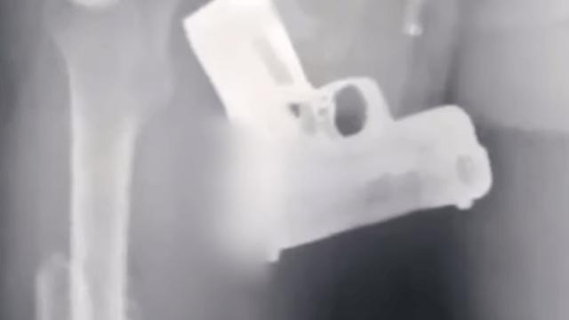 Policías de Jalisco encontraron una pistola en el recto de un hombre