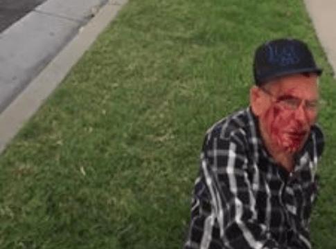 Atacan a hombre de 92 años con ladrillo