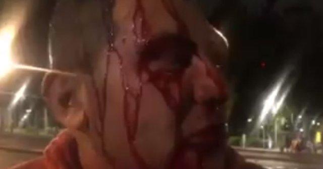 Reportero SSP Policías Golpean Doctores Corro Reforma Azteca