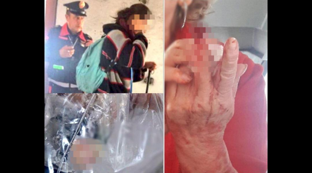 Vagonero arranca dedo de mujer de la tercera edad en el metro