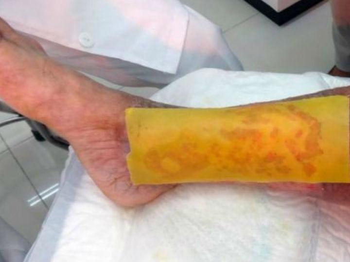 ¿De verdad funciona el parche de miel en el pie diabético?