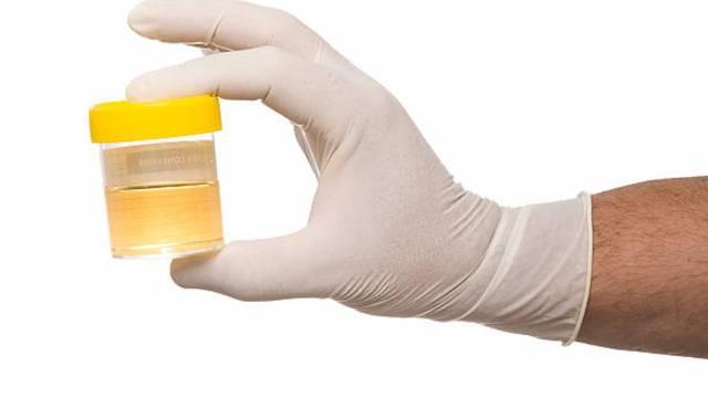 7/11/19 muestras-orina-cáncer-cervicouterino/ muestras