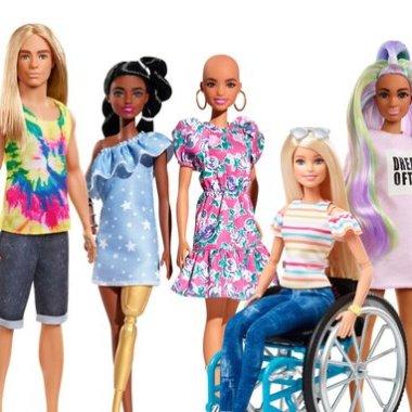 Por inclusividad lanzaron una muñeca con vitiligo y una sin cabello (Imagen: Nay Salvatori)