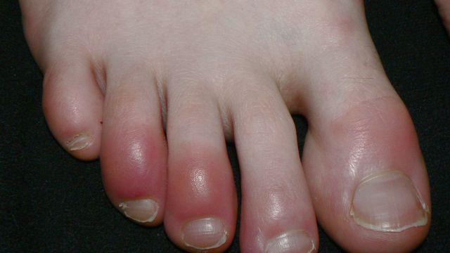 Dedos inflamados: el extraño y posible síntoma de Covid-19