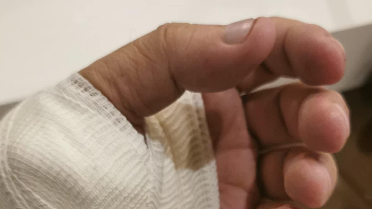 ebrard mano cortada hospital