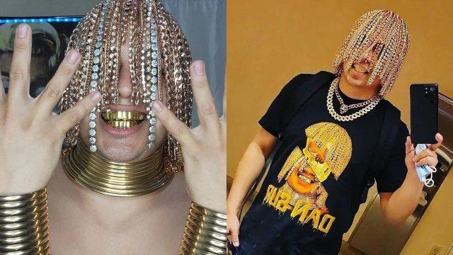 Rapero se implanta cadenas de oro n la cabeza para lucir diferente