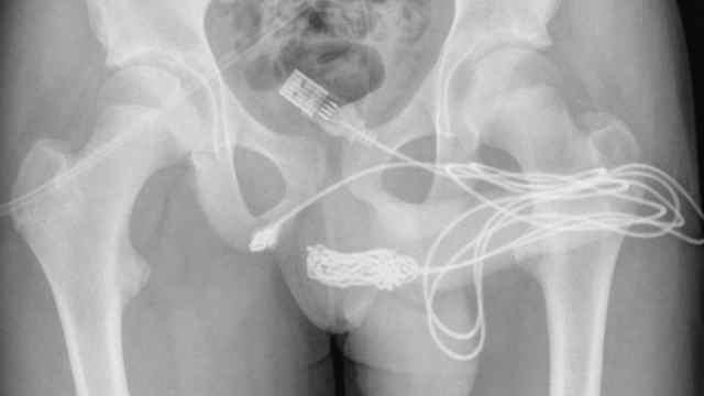 adolescente cable usb uretra 2