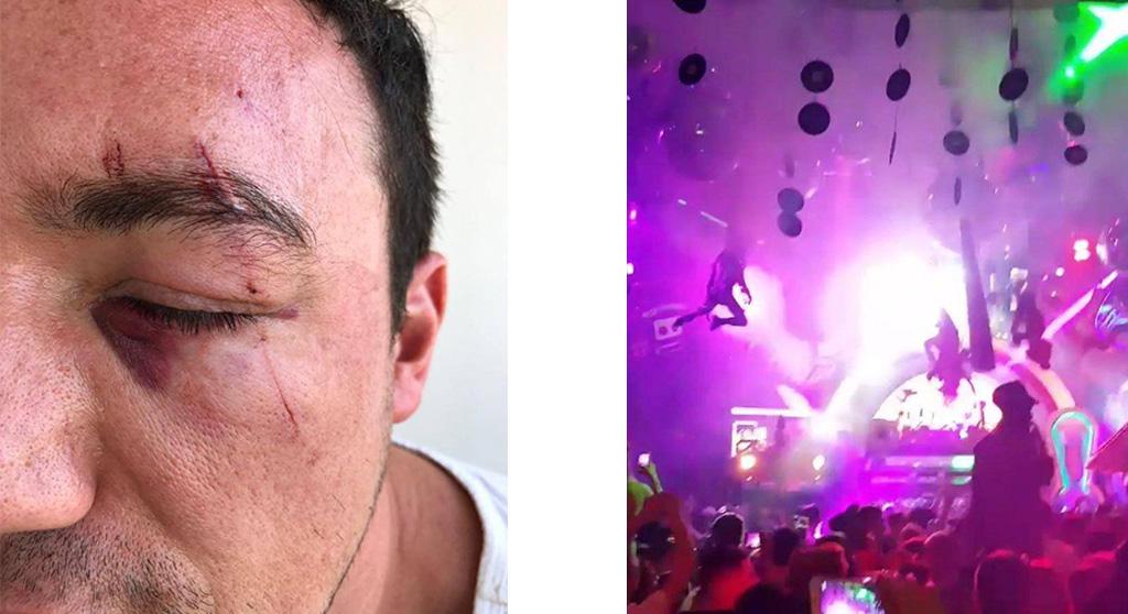A clubber is suing Amnesia Ibiza after a record fell on his face