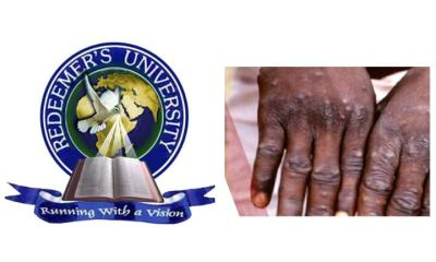 Redeemers University To Carry Out Test For Monkey Pox