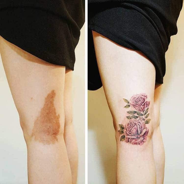 Se Puede Tatuar En Piel Con Manchas Love Tattoos Amino
