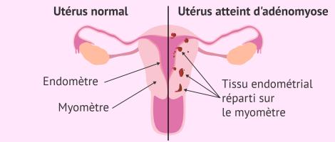 Hystérectomie - adénomyose