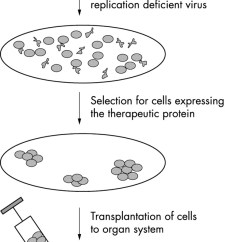 In Vivo Gene Therapy Diagram Rock Formation Cycle Clinical Medicine Postgraduate Medical Journal Download Figure Open New Tab