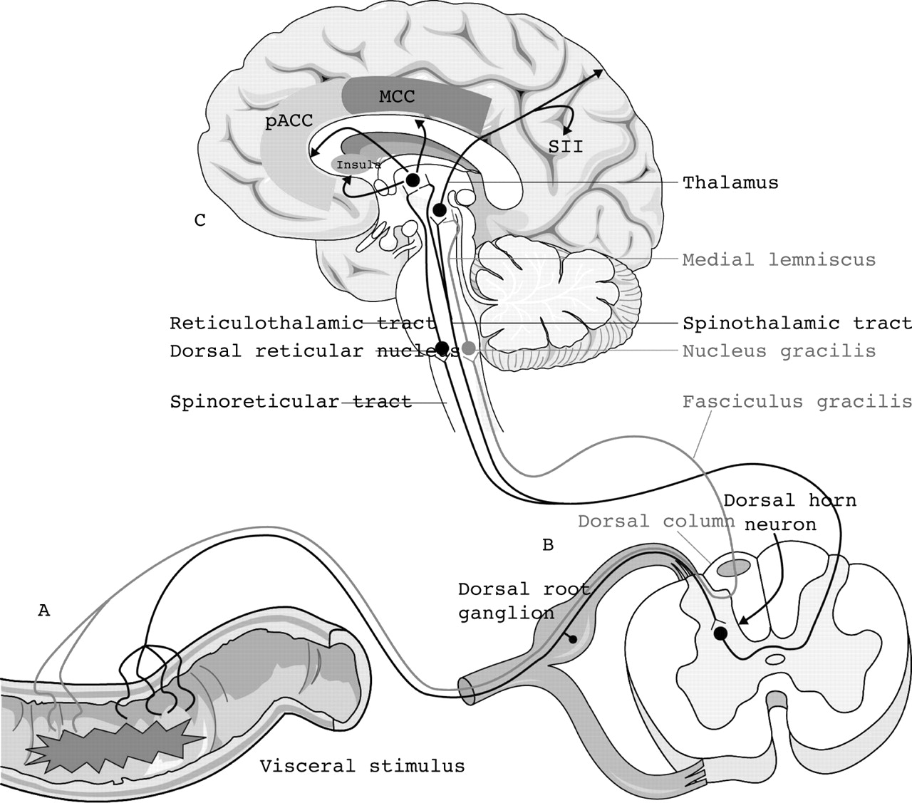 hight resolution of diagram of brain and pain