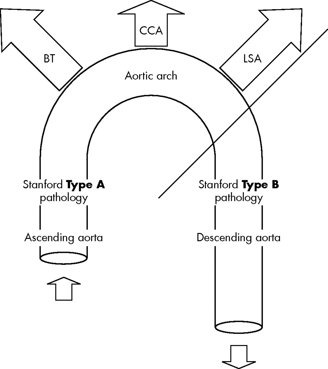 Acute Aortic Syndrome Pathology And The Utic