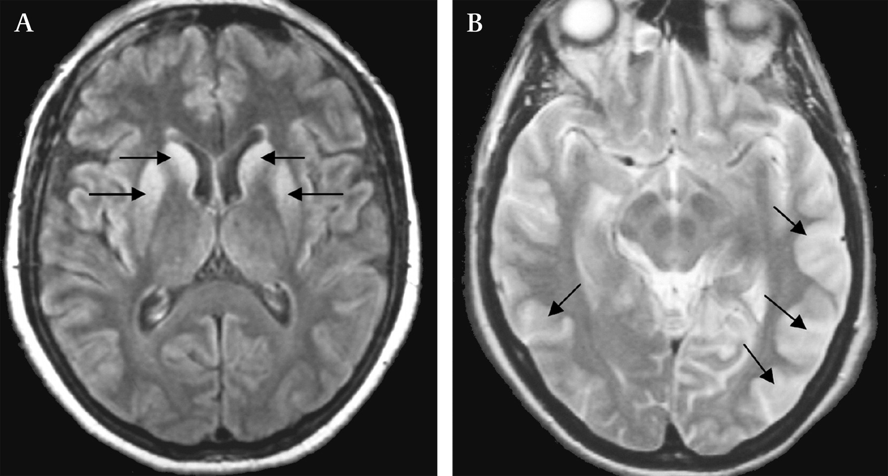 CreutzfeldtJacob disease mimics or how to sort out the subacute encephalopathy patient