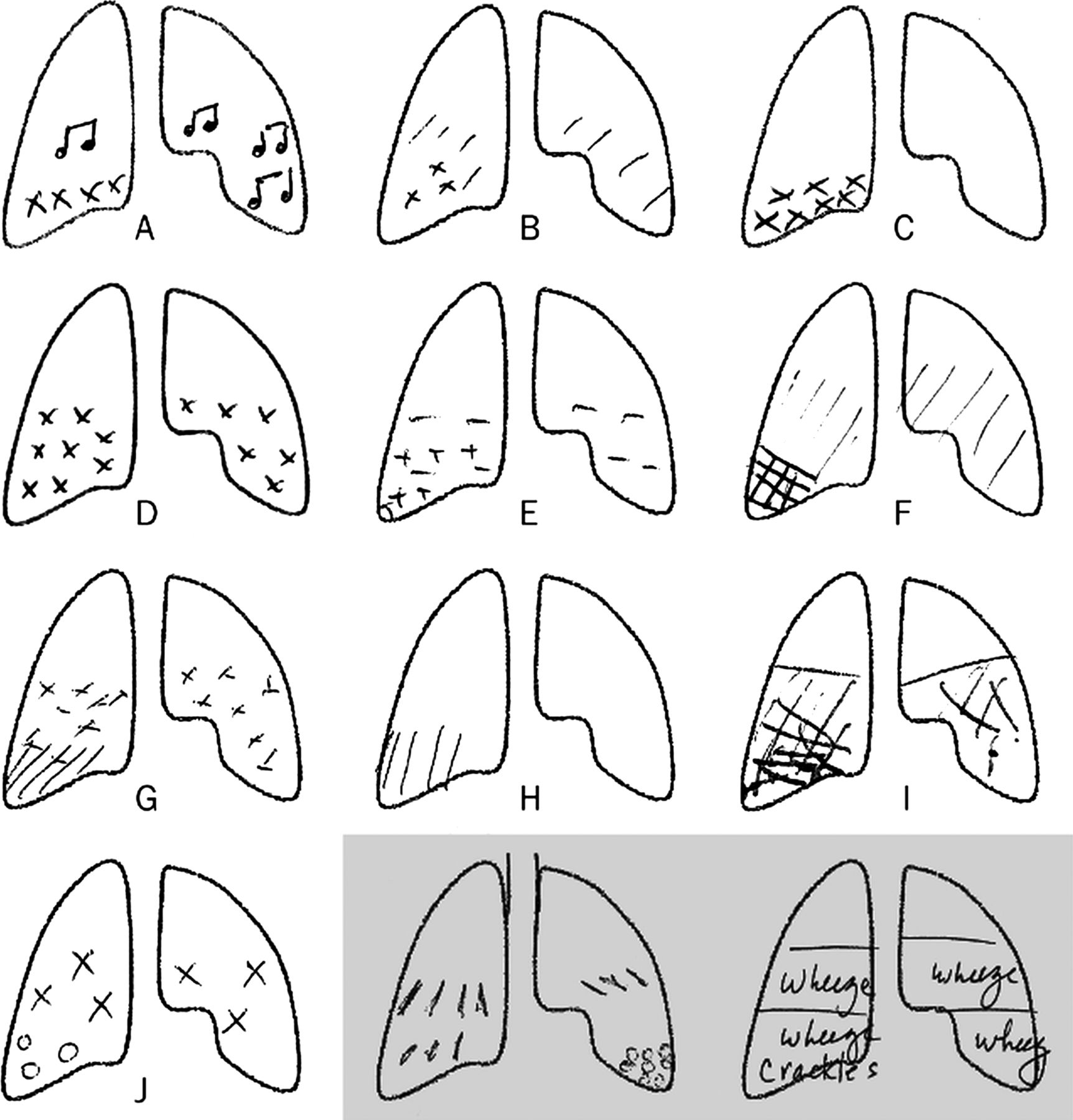 Lung Sounds How Doctors Draw Crackles And Wheeze