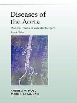 Diseases of the Aorta cover image