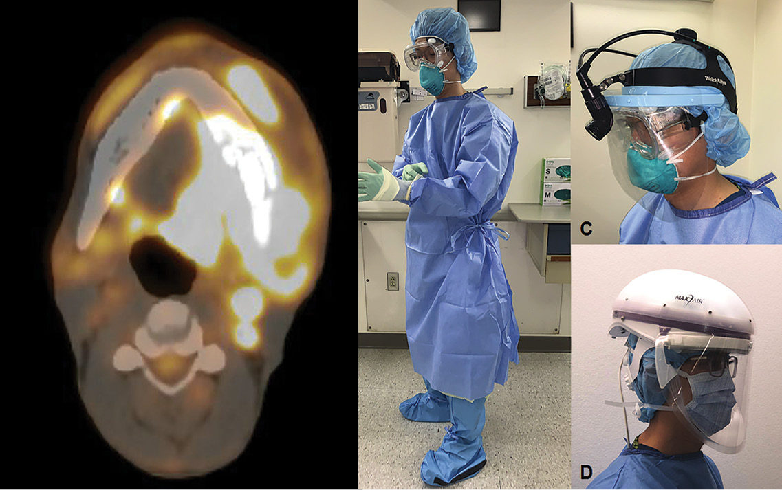 Head and Neck Cancer Care in a Pandemic image of PPE and radiograph