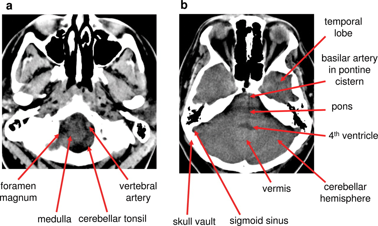 Normal anatomy of the brain on CT and MRI with a few ...