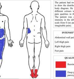 download figure open in new tab download powerpoint figure 2 body diagram showing pain  [ 1280 x 874 Pixel ]