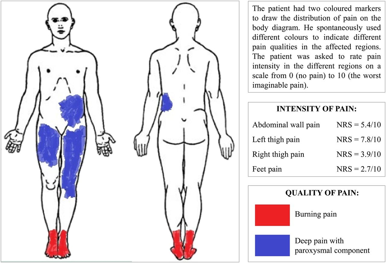 hight resolution of download figure open in new tab download powerpoint figure 2 body diagram showing pain