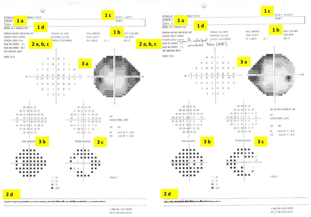 Download figure also how to interpret visual fields practical neurology rh pnj