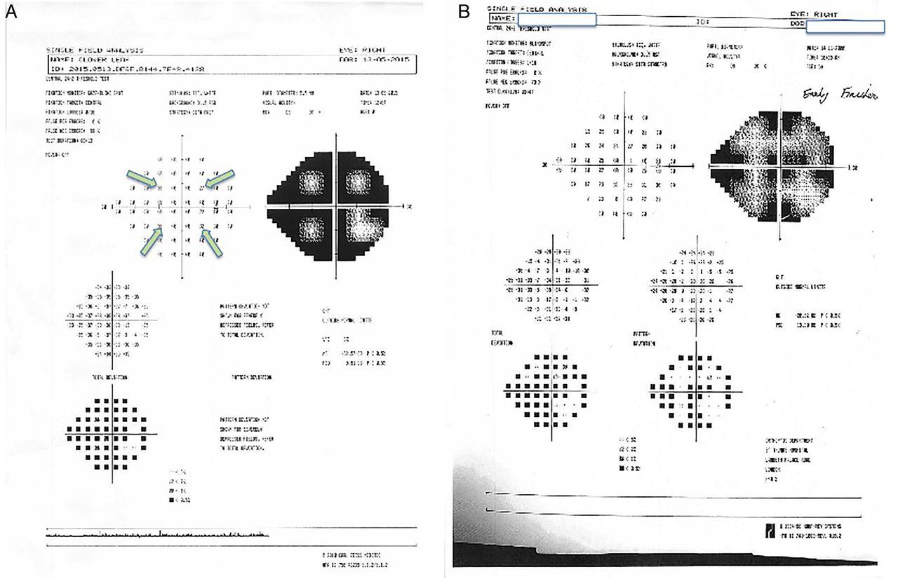 also how to interpret visual fields practical neurology rh pnj