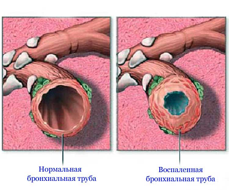 Akut prosztatitis kód μB 10