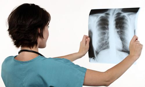 pierderea în greutate pneumotorax)