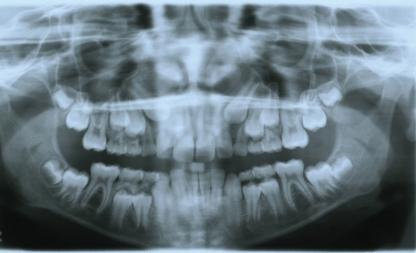 Presence of impacted maxillary canines