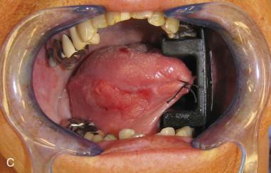 Glossectomy  Pocket Dentistry