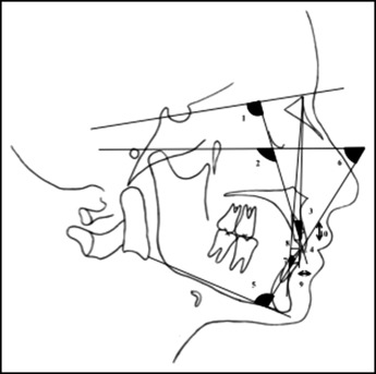 Evaluation of maxillary arch dimensional and inclination