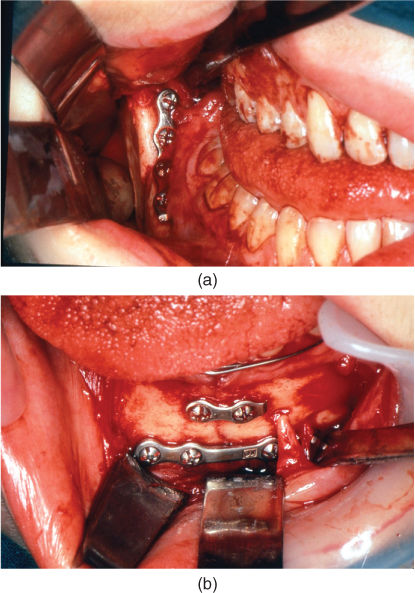 Image showing Open reduction and internal fixation (ORIF) of a bilateral fracture of the mandible using an intraoral approach and titanium miniplates with monocortical screws.