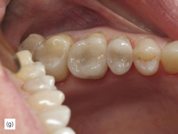 Photograph shows patient's occlusal view of teeth, which looks like healthy teeth structure and with long-lasting predictable results.