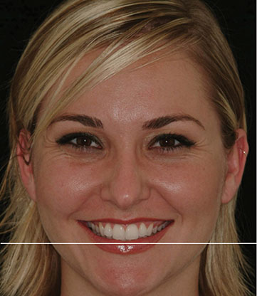 Photograph shows lady's full face smiling which is occlusal plane, where line is drawn parallel to horizon and that touches incisal edge of both centrals.