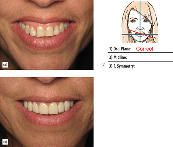 Photographs show patient smiling and smile is observed and recorded in form with correction notes where 1) occ. Plane: correct is noted and finally patient's smile is changed and looks healthy.