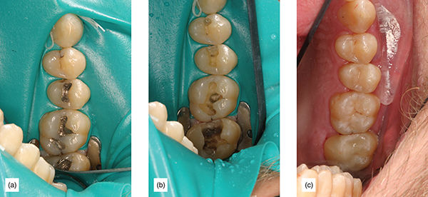 Photographs show practical and predictable or source of many problems with direct composite restorations.