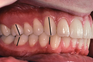 Photo showing Angle Class I occlusion of human teeth.