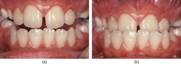 Photo of an anterior crossbite with functional shift: closing bite where the mandible is guided in a forward/anterior direction and an anterior crossbite is created.