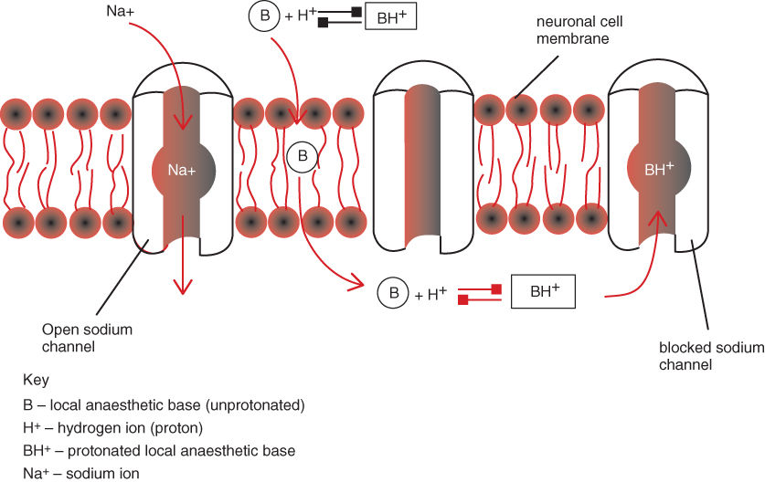 Scheme for Local anaesthetic - mechanism of action on peripheral sensory nerves.