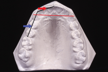 Diagram for Arch length, from the mesial surface of the first permanent molar to the distal surface of the lateral incisor.