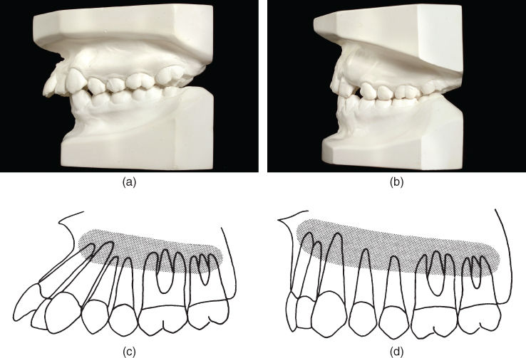 a) Diagram for proclined incisors and crowding of the anterior teeth.; b) Diagram for large apical base.; c) Diagram for skeletal base.; d) Diagram for apical base resulting in vertical positions of the teeth.
