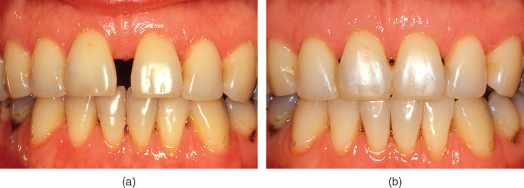 a) Photo showing median diastema before treatment.; b) Photo showing median diastema after closure with a fixed orthodontic appliance.
