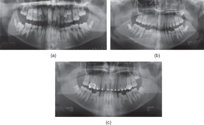 a) Radiograph for mandibular second primary molars in occlusion and agenesis of the mandibular second premolars.; b) Radiograph for infraocclusion on both primary molars.; c) Radiograph for pronounced infraocclusion on the second primary molars and the first premolars starting to tip distally.