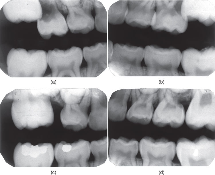 a) Radiograph for maxillary first permanent molars in ectopic eruption and atypical resorption on the second primary molars.; b) Radiograph for space deficiency for the second premolar due to mesial movement of the first permanent molar and reversible ectopic eruption.
