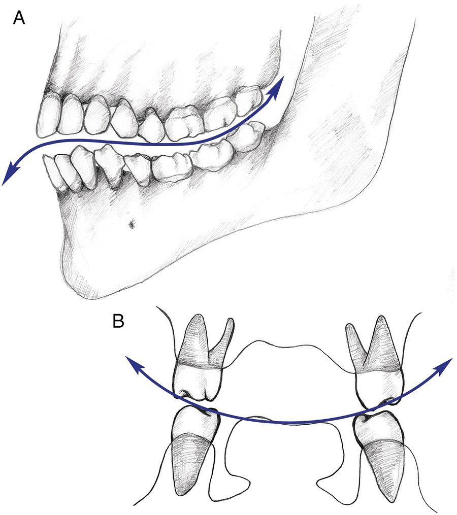 2 Sketches of the types of occlusal curvature: curve of Spee (top) and curve of Wilson (bottom) with 2 double-headed arrows representing the curves.