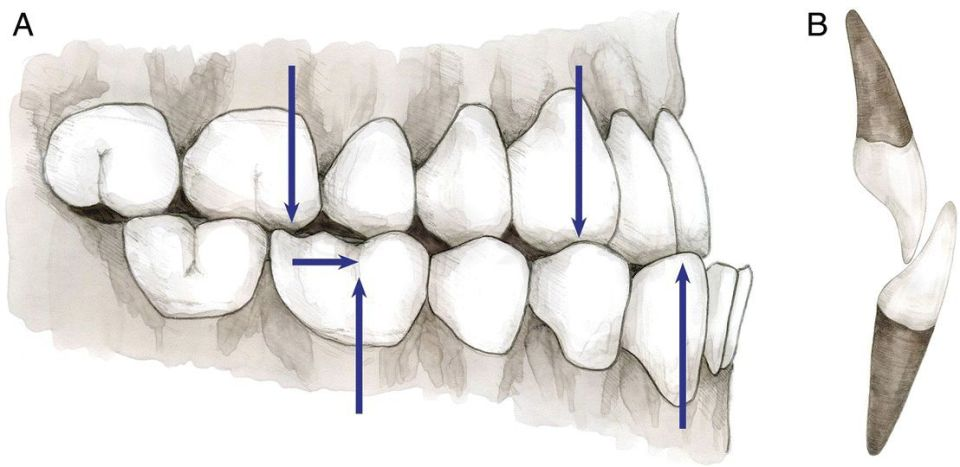 2 Illustrations of class III malocclusion displaying molar and canine relationship depicted by arrows (left) and incisor relationship (right).