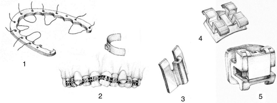 Illustration depicting the evolution of brackets, displaying the initial appliance introduced by Fauchard (1), ribbon arch (2), Begg (3), conventional edgewise bracket (4), and self-ligating bracket (5).